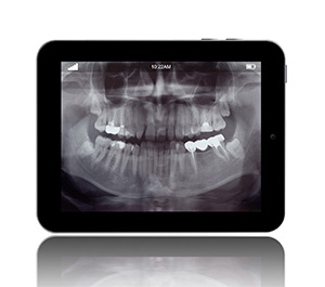 Rock Hill family dentist | digital dental x-rays| Dr. Durant